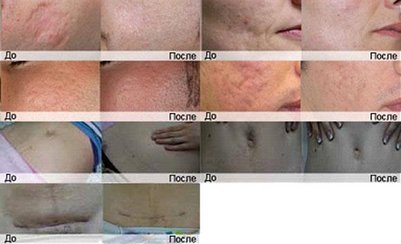 Лазерная эпиляция шрамы
